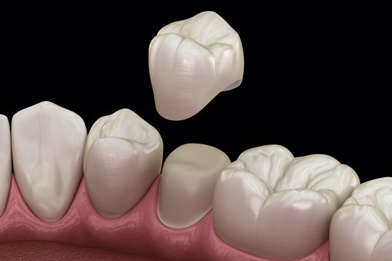 dental crown hull