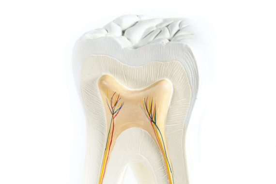 root canal treatment hull